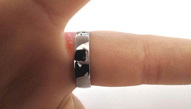 Wedding Ring Rash Reactions To Rings Jewellery Rashes Platinum Rashes Mark Johnson